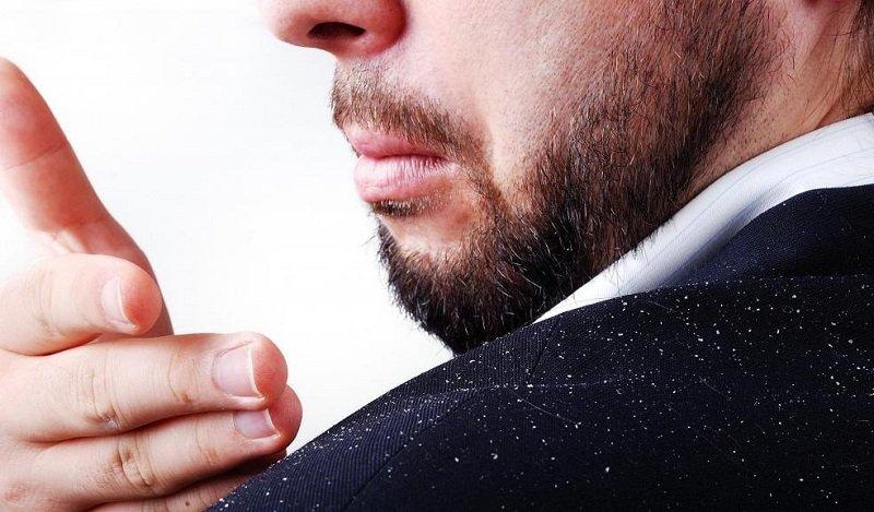 Gel vuốt tóc cũng là một trong những nguyên nhân gây nên gàu