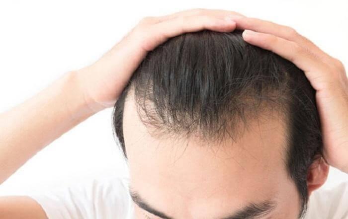 Những người tóc yếu nếu lạm dụng gel vuốt tóc có thể khiến tóc rụng