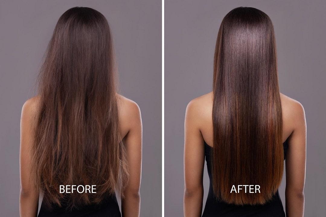 Kết quả sau khi phục hồi tóc thành công
