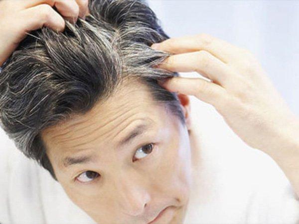 Tóc có thể bạc nhanh hơn nếu sử dụng keo vuốt kém chất lượng
