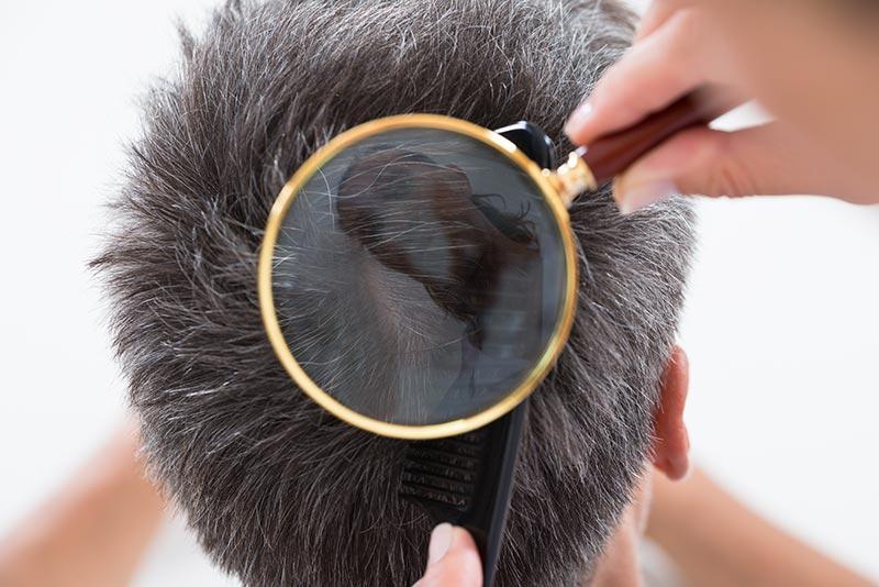 """Tóc có thể bị bạc nhanh hơn khi mất cân bằng pH do hóa chất có trong keo xịt tóc """"dỏm"""""""