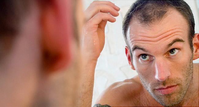 Sử dụng keo tạo kiểu không đúng cách dễ gây rụng tóc