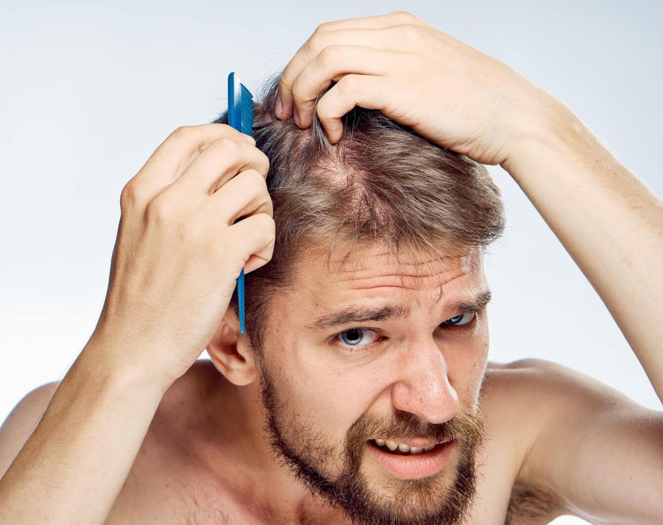 """Mua gel vuốt tóc tạo kiểu cho nam """"fake"""" có thể khiến tóc rụng gây hói đầu"""