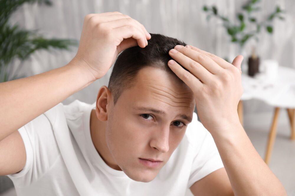 Tóc xẹp là vì chứa quá nhiều cặn nhờn dư thừa