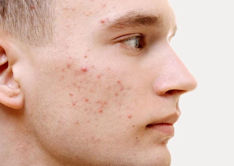 Mụn ở nam giới thường do nội tiết tố gây ra