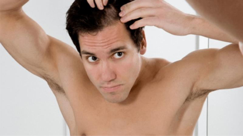 Lạm dụng wax vuốt tóc mà không có cách chăm sóc phù hợp có thể gây rụng tóc